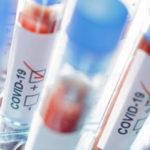 CORONAVIRUS / Due nuovi positivi nelle Marche, 55 i pazienti ancora ricoverati negli ospedali